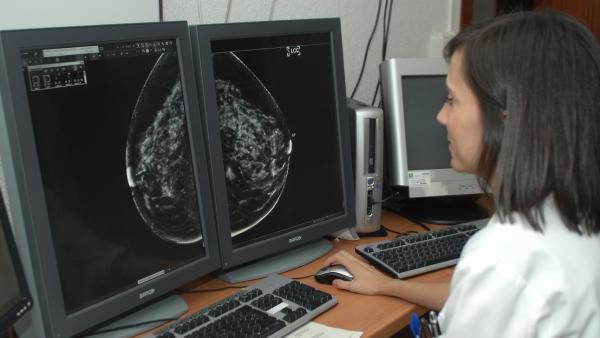 Radiografía de una mamografía.