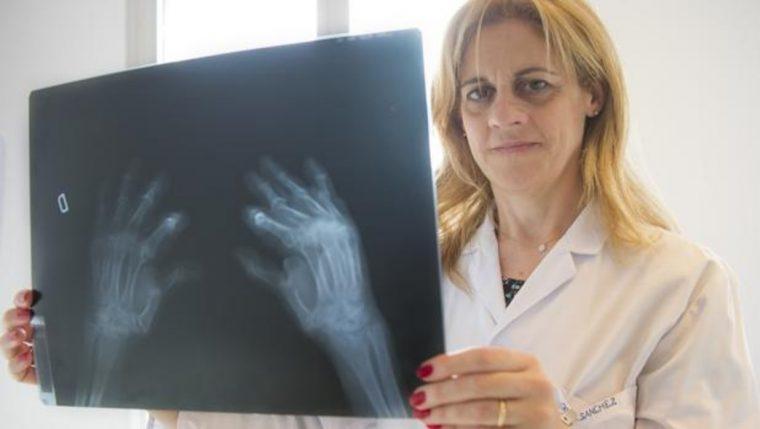 Una profesional mira los resultados de una radiografía de manos - Eduardo San Bernardo